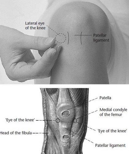 Точка ST-35, массаж которой избавляет от боли в колене