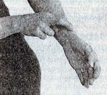 Лечение кисты яичников