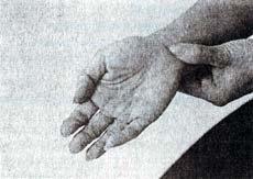 Симптомы климакса - поможет точечный массаж