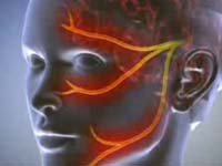 Избавляемся от воспаления тройничного нерва