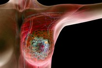 Традиционное лечение опухоли груди