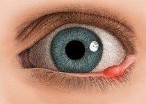 Ячмень - заболевание глаза