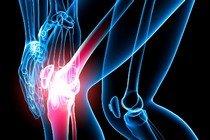 Лечение артрита народными способами