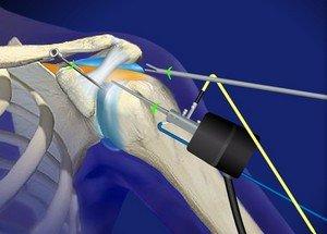 Лечение привычного вывиха плечевого сустава
