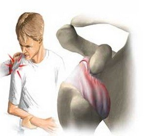 Причины привычного вывиха плечевого сустава