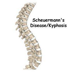 Какие причины могут приводить к болезни Шейерманна-Мау