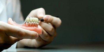 Крепление бюгельных зубных протезов