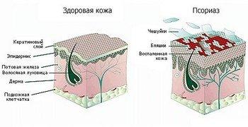 Морфологическое строение псориаза