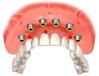 О зубных протезах простыми словами