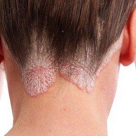 Поражение псориазом кожных покровов головы