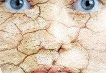 Всё о лечение псориаза