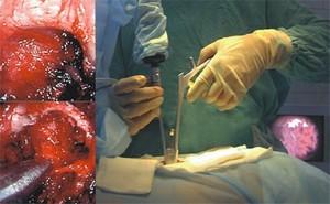 Эндоскопическое лечение межпозвоночной грыжи