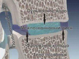Строение нормального межпозвоночного диска