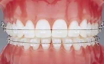Сапфировые брекеты - новое слово в эстетике улыбки