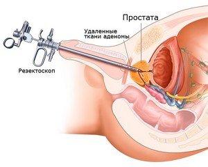 Операция ТУР простаты