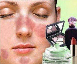 Косметика может вызывать аллергию