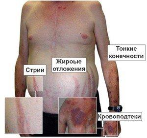 Проявления болезни Иценко-Кушинга