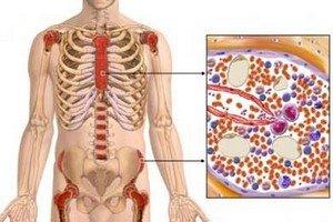 Симптоматика миеломной болезни