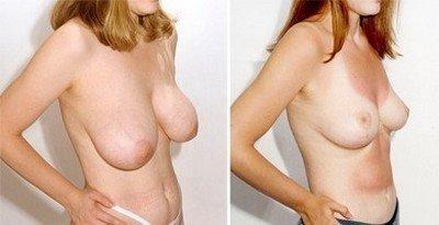 Операции по уменьшению груди: с качественной пластической хирургией невозможное возможно