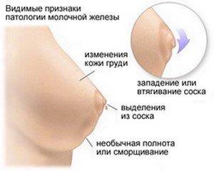 Видимые признаки патологии при самообследовании молочных желез