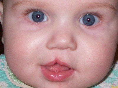 Коррекция речи детей с расщелиной верхней губы