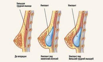 Расположение имплантатов в груди