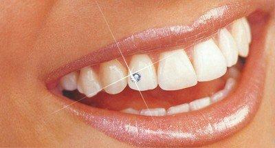Украшения зубов бриллиантами