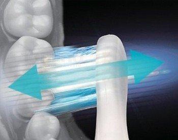 Вибрация ультразвуковой зубной щетки помогает лучше вычищать