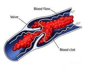 Какие бывают тромбофлебиты?