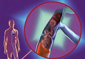 Наиболее опасные осложнения тромбофлебитов