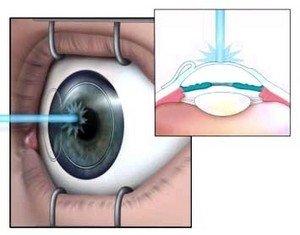 Операции типа LASIK болезненные