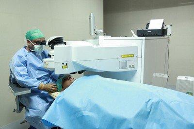 Проведение операции LASIK
