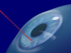 После операций типа LASIK зрение никогда не ухудшается