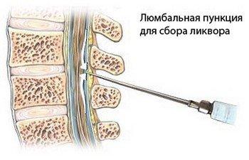 Анализ спинномозговой жидкости для диагностики аневризмы