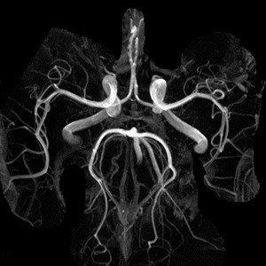 Аневризма на МРТ-снимке