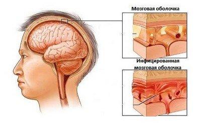 Нарушения движений при менингите