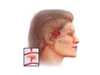 Основные методы современной диагностики аневризм сосудов головного мозга