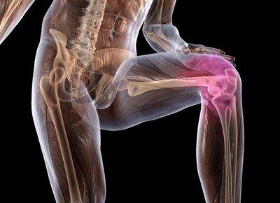 О деформирующем остеоартрозе коленного сустава