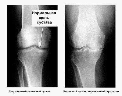 Диагностика остеоартроза коленного сустава