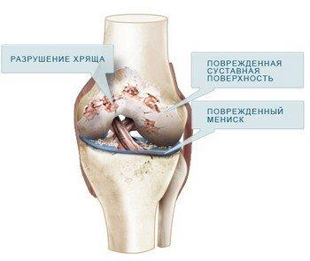 Причины остеоартроза коленного сустава