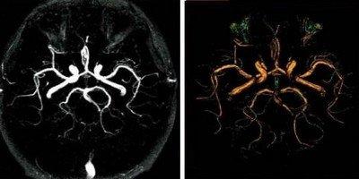 Что такое МРТ-исследование с контрастированием?