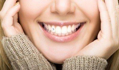 Скайсы - модные зубные украшения? набирающие популярность в России