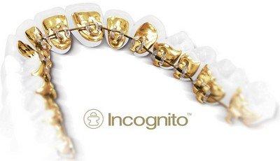 Невидимые брекеты «Incognito» - новое направление в эстетической стоматологии