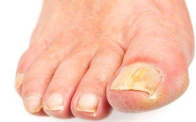 Что рекомендуют микологи в плане лечения грибка ногтей?
