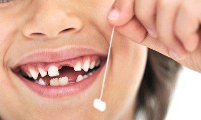 Вот так в детстве мы удаляли молочные зубы