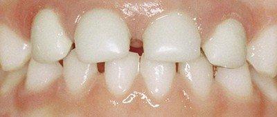 Здоровые молочные зубы - залог здоровья постоянных зубов