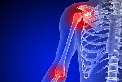 Каковы причины болей в суставах?