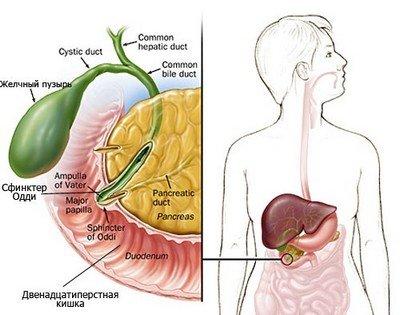 Лечение и осложнения дисфункции сфинктера Одди