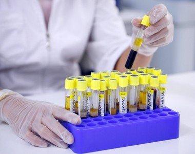 Как определить овариальный резерв по гормонам?