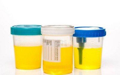 Нормальный и патологический клеточный состав мочи при беременности